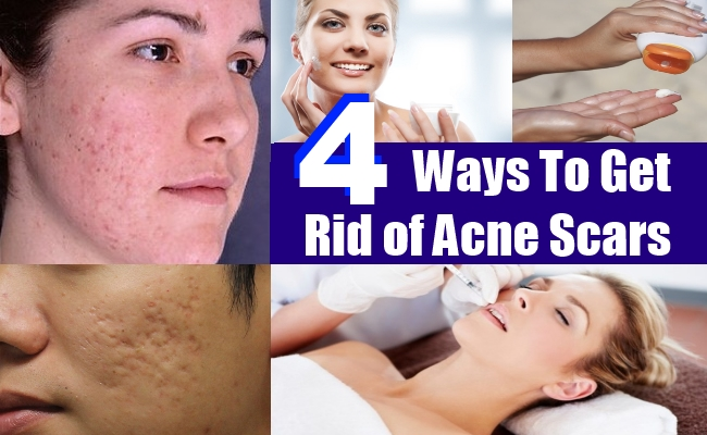 How to get rid of patchy red skin on face book