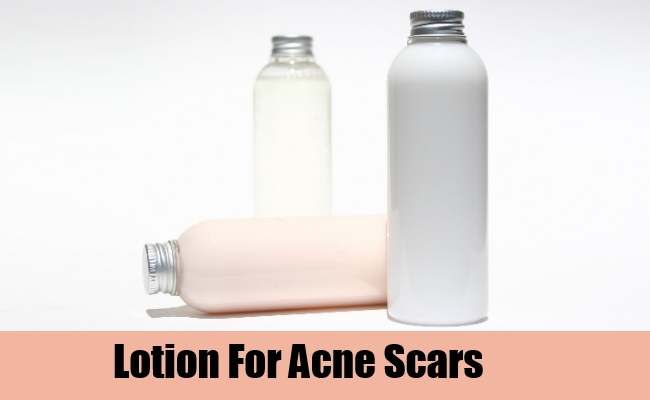how to get rid of indented scars on face