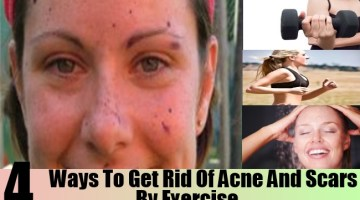 Ways To Get Rid Of Acne And Scars By Exercise