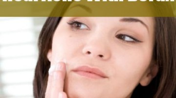 Heal Acne With Borax