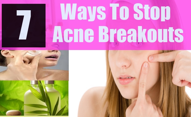 Natural Ways To Stop Acne Breakouts