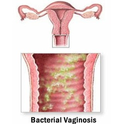 Remedies For Bacterial Vaginosis