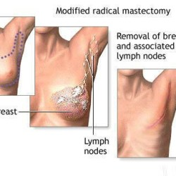 Breast Mastectomy Complications