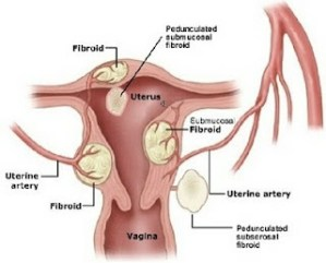 Types Of Abnormal Uterine Bleeding