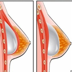 Things To Do Before Breast Augmentation