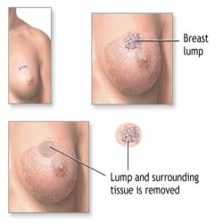 Reason For Lump In The Breast