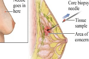 Core Biopsy Of Breast