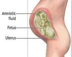 How To Detect Low Amniotic Fluid Levels During Pregnancy