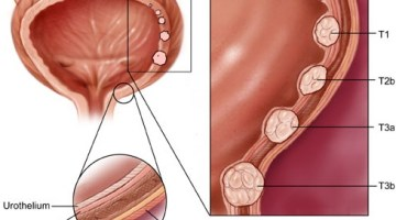 Types And Symptoms Of Bladder Cancer