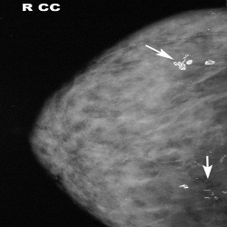Types And Causes Of Breast Calcifications