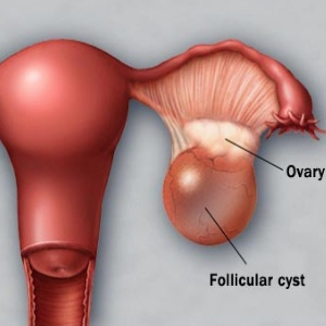 Types Of Cysts In Ovaries