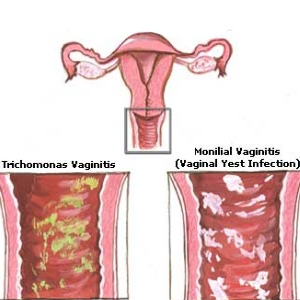 Causes And Symptoms Of Yeast Infection During Pregnancy