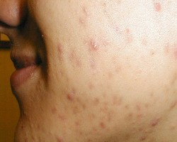 Causes And Symptoms Of Acne Inversa