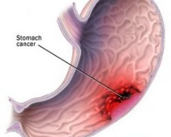 Important Symptoms Of Stomach Cancer