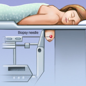 Procedure Of Stereotactic Breast Biopsy