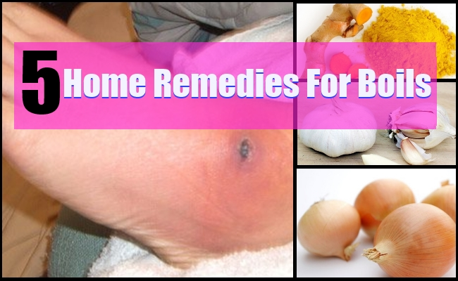 TOP 5 HOME REMEDIES FOR BOILS | Lady Care Health