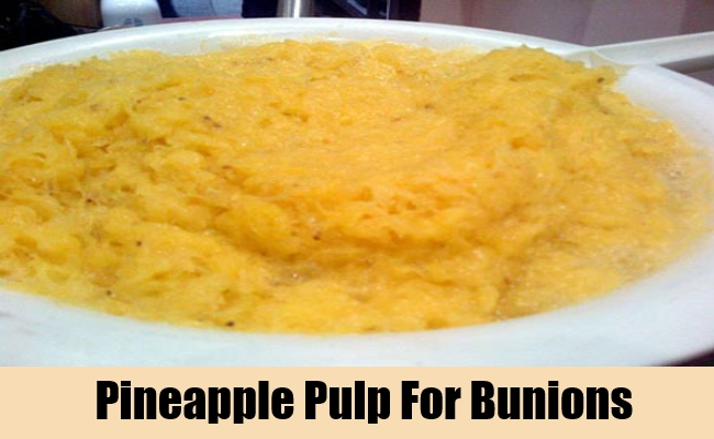 Pineapple Pulp For Bunions