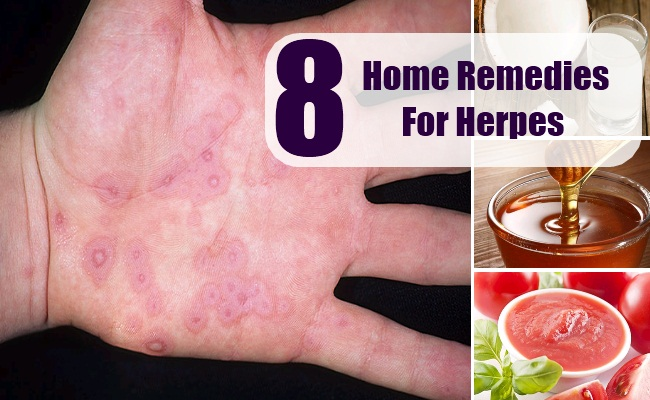 What medicine is used for herpes