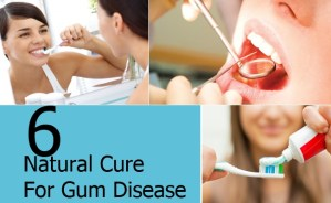 Natural Cure For Gum Disease