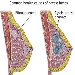 Breast Swelling with Breast Lumps