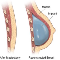 Reconstructive Breast Surgery