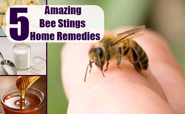 Bee Stings Home Remedies