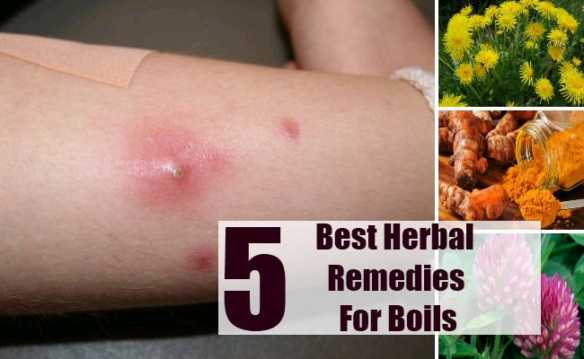 Herbal Remedies For Boils