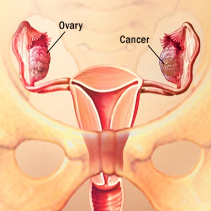 Treatment Options For Uterine Ovarian Cancer