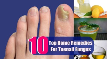 10 Top Home Remedies For Toenail Fungus