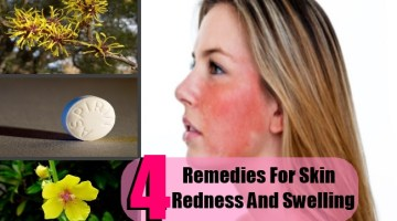 4 Top Natural Remedies For Skin Redness And Swelling