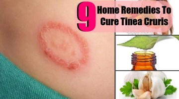9 Top Home Remedies To Cure Tinea Cruris