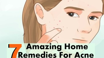 7 Amazing Home Remedies For Acne
