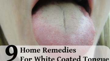9 Easy Home Remedies For White Coated Tongue