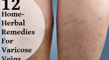 Top 12 Home-Herbal Remedies For Varicose Veins