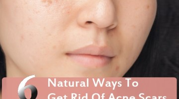 Natural Ways To Get Rid Of Acne Scars