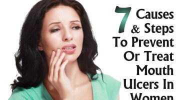 Causes And Steps To Prevent Or Treat Mouth Ulcers In Women