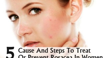 Cause And Steps To Treat Or Prevent Rosacea In Women