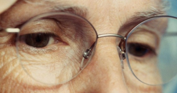 Macular Degeneration In Women