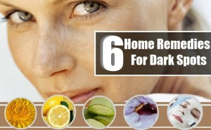 home-remedies-for-dark-spots