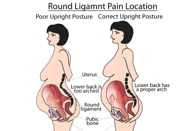 Round Ligament Pain