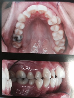 Case Study #1 Before Pictures / Permission to display photo granted by participating patient