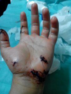 mano-ferita-morso-barracuda