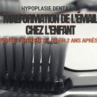 Hypoplasie dentaire: malformation de l'émail chez l'enfant - notre expérience