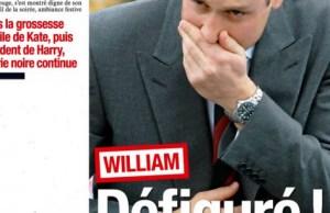 Kate Middleton- William défiguré dans selon France Dimanche