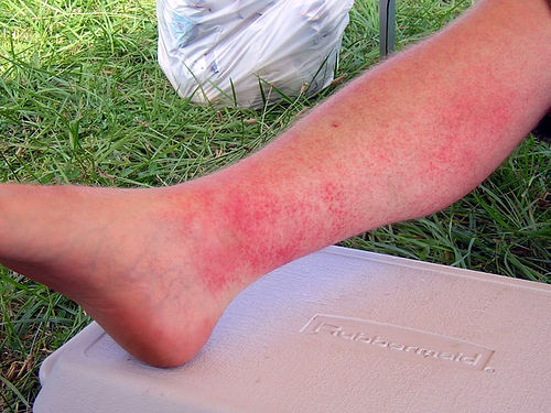bonnaroo sun poisoning