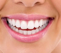 livermore teeth whitening