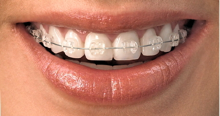 Clear-Orthodontic-Brackets1