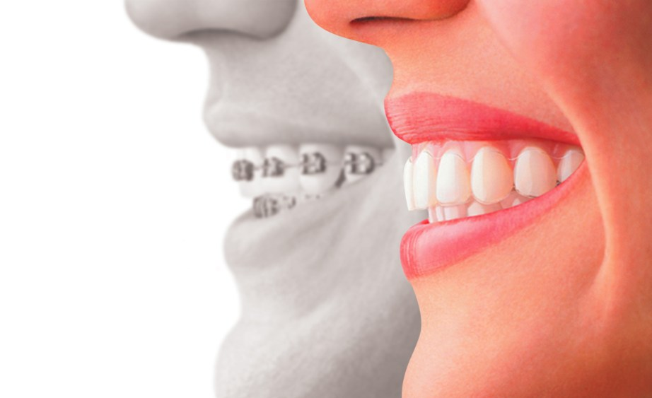 Smile Makeover By Cosmetic Dentistry
