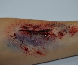taller-heridas-5
