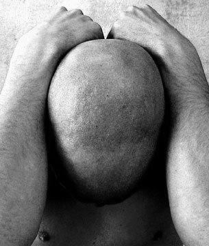El alquitrán de la alopecia las revocaciones